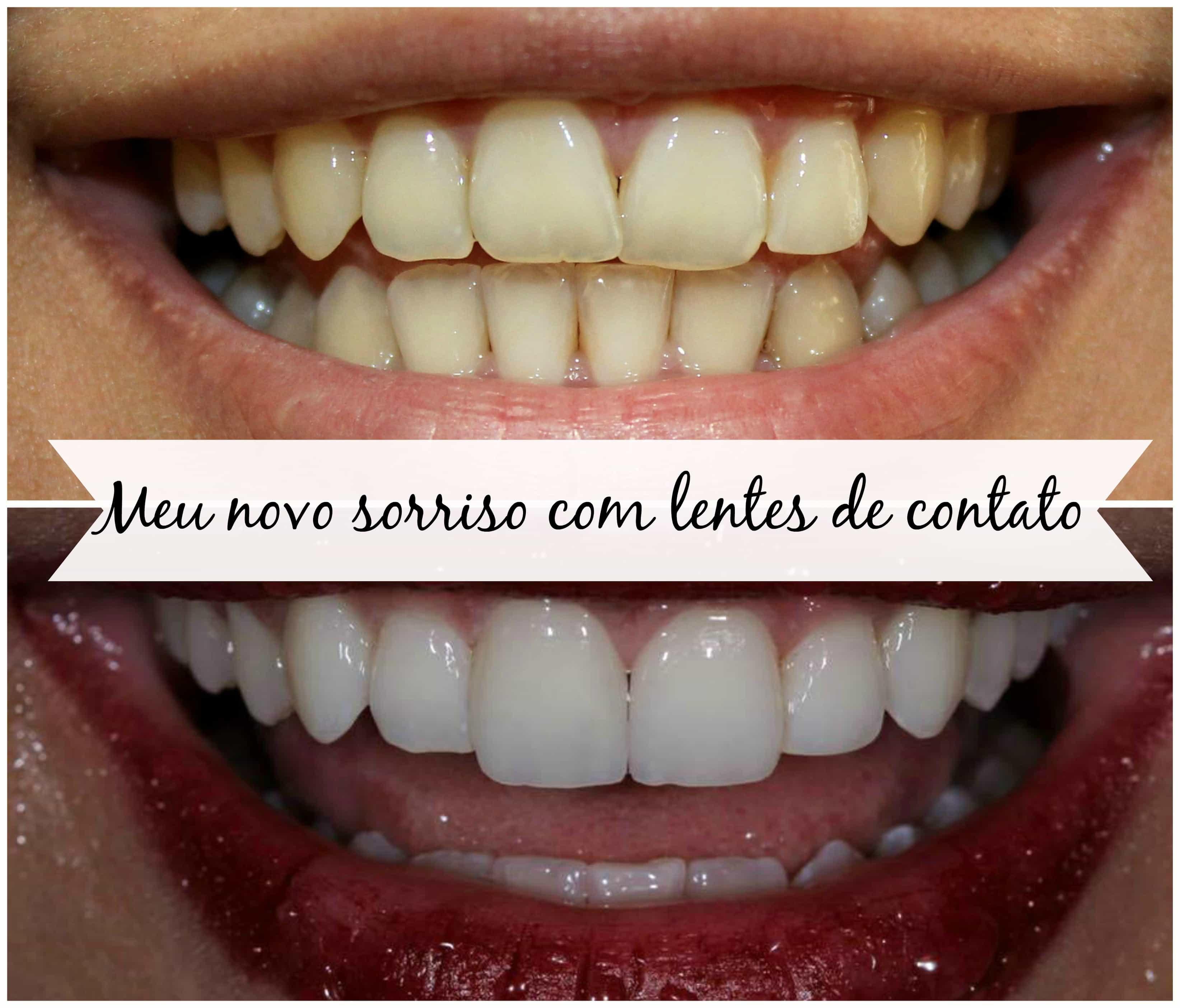 capa dente